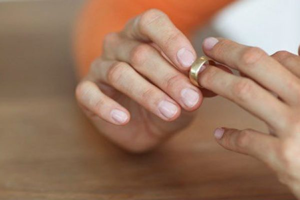 Removing Wedding Ring