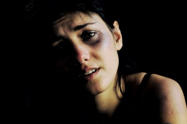 woman victim of physical abuse